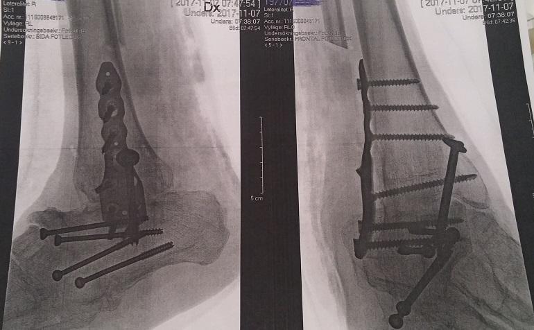 Ronny Jansson fötter röntgen